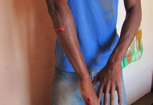 arm-injuries